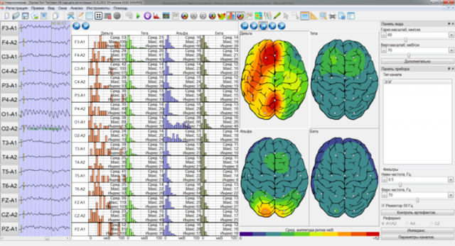 Энцефалограмма головного мозга для водительского удостоверения (прав) в 2020 - цена